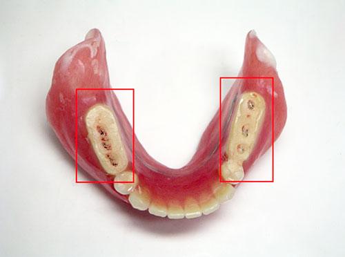 治療用義歯③