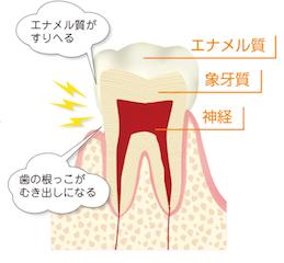 「歯 エナメル質」の画像検索結果